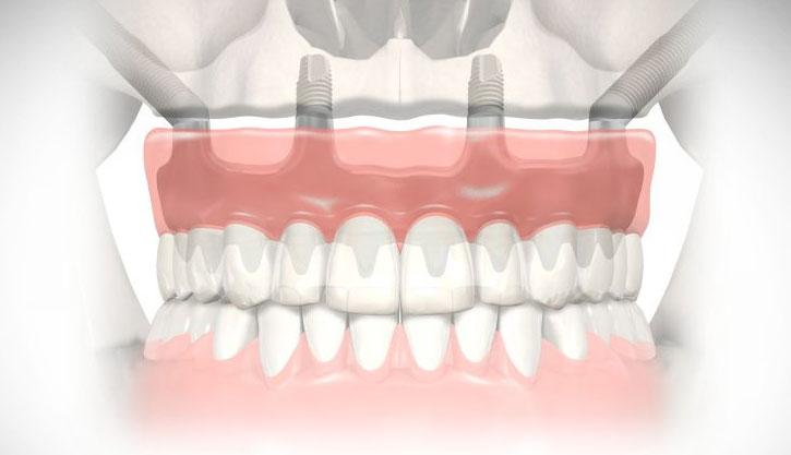 Alta-Implantes-Banner-zigomáticos