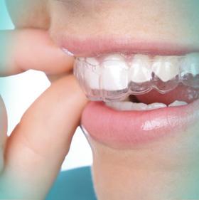 altaodontologia-APARELHO-INVISIVEL-d