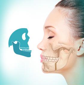 altaodontologia-cirurgia-ortognatica-d