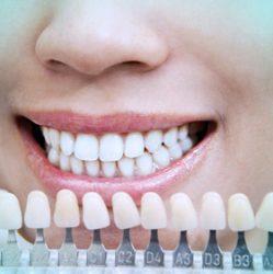 lentes-contato-Odontologia