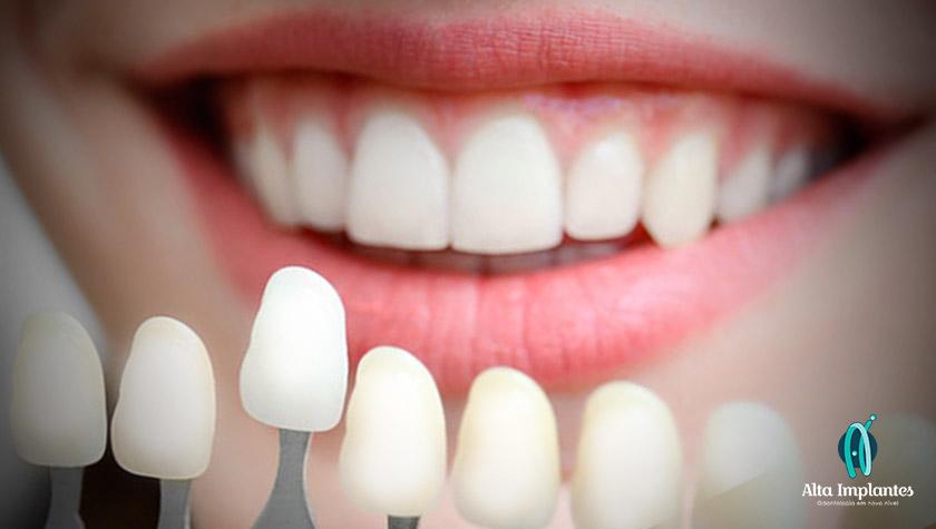 Lentes de contato dental   Tatuapé   Anália Franco SP   Alta Implantes ac083d031c