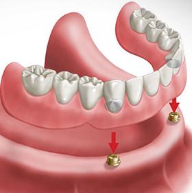 over-denture