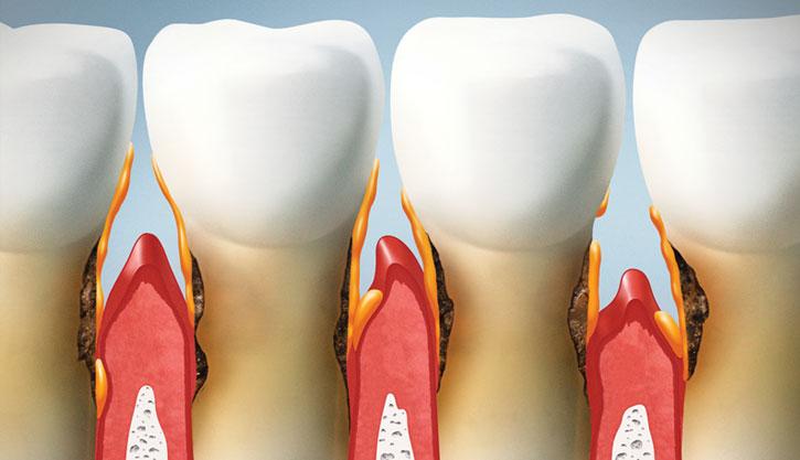 Alta-Implantes-Banner-Periodontia