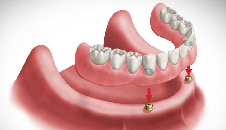 Dentadura moderna - Overdenture (Prótese total ou removível)