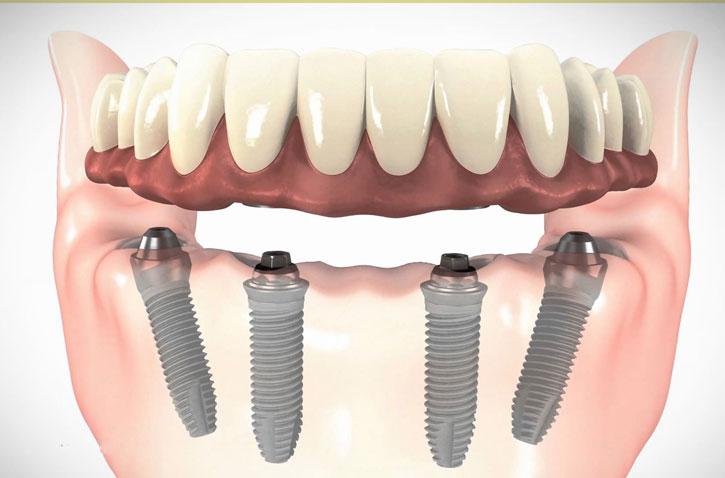 Alta-Implantes-Banner-protocolo-carga-imediata