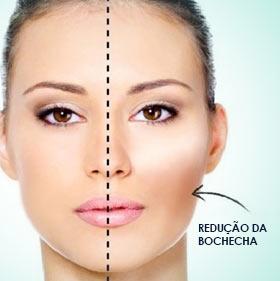 Bichectomia (Cirugia da Bochecha)