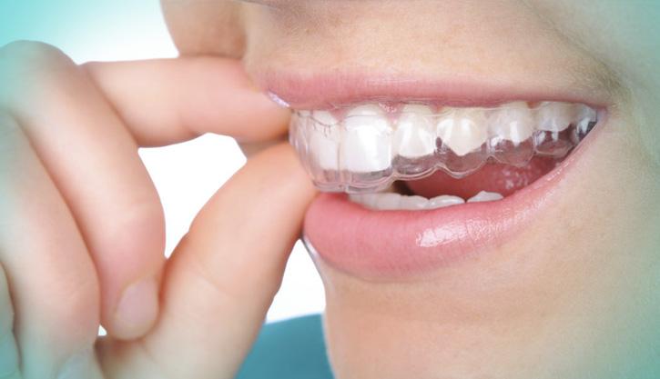 altaodontologia-APARELHO-INVISIVEL