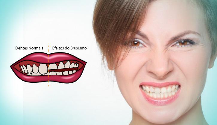 altaodontologia-bruxismo