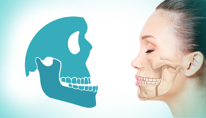 altaodontologia-cirurgia-ortognatica