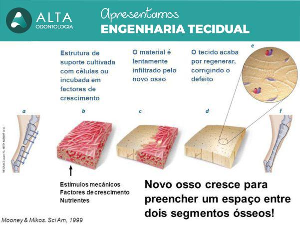 O material é lentamente infiltrado pelo novo osso. O tecido acaba por regenerar, corrigindo o defeito. Estímulos mecânicos. Factores de crescimento. Nutrientes. Novo osso cresce para preencher um espaço entre dois segmentos ósseos! Mooney & Mikos. Sci Am, 1999.